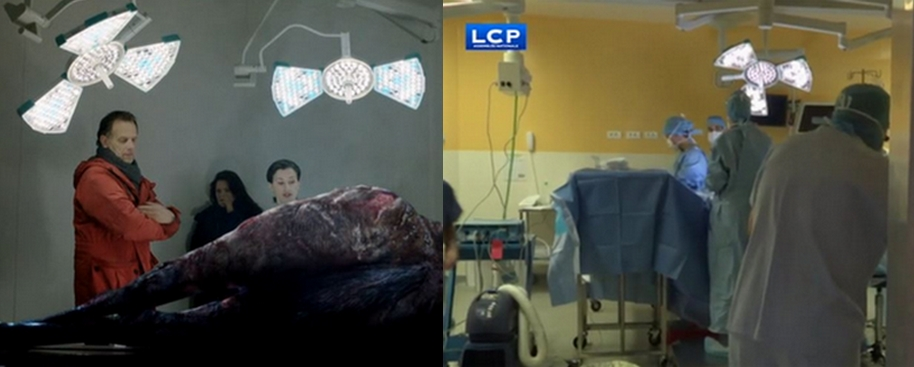 Surgiris's surgical lights at the French television